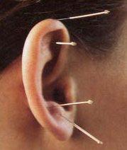 Acupunctuur en andere complementaire zorg bij kanker zoals voedingssupplementen zou moeten worden onderzocht op resultaat en vergoed